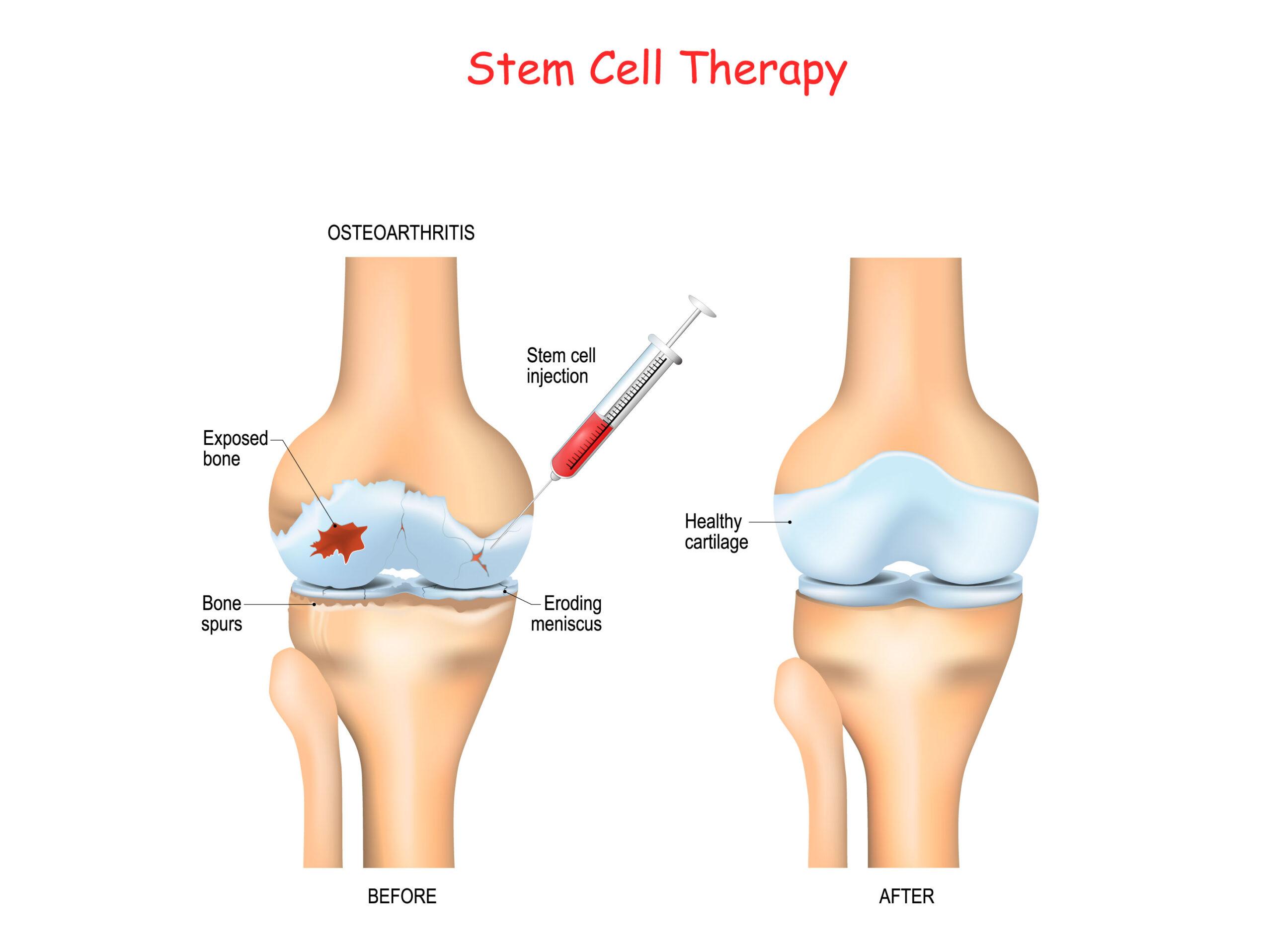 Afecţiuni-tratate-de-celulele-stem